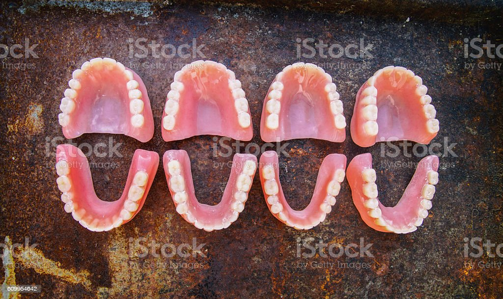 Dental smile jaws teeth. Tooth prosthesis. stock photo