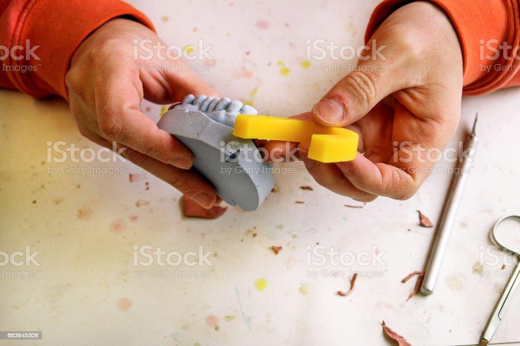 Dental technician in process of placing dental wax. Dental prosthesis, dentures, prosthetics work. Dental technician in process of making dentures. Dental technician in process of placing dental wax. stock photo