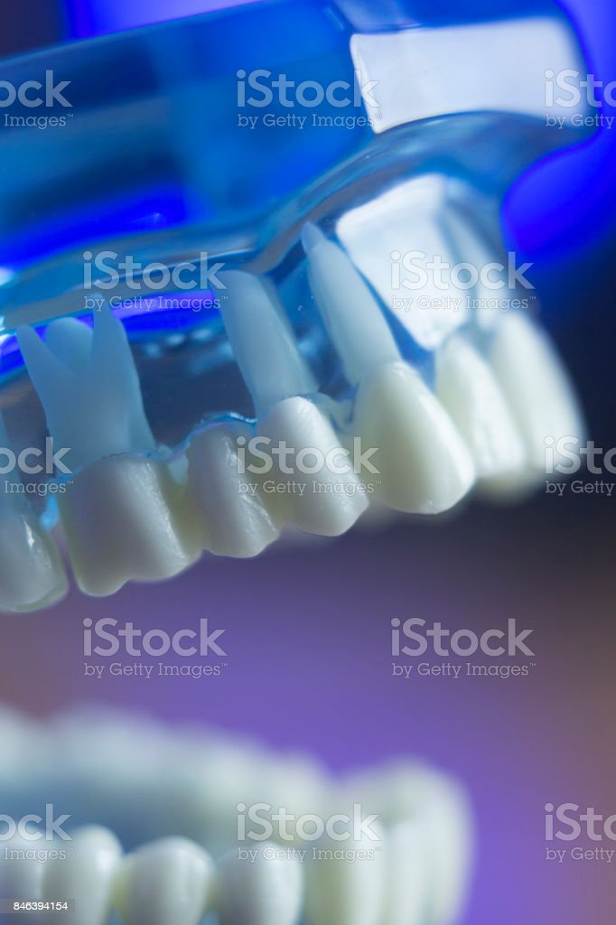 Dental teeth orthodontic dentistry teachng model with gums, tooth enamel, plaque, roots and metal implants. stock photo