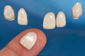 Dental Veneer on Finger