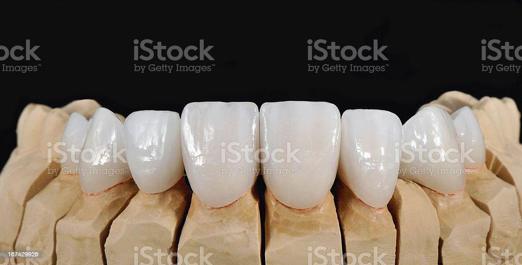 Dental Veneers stock photo