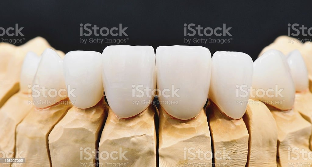 Dental Veneers royalty-free stock photo