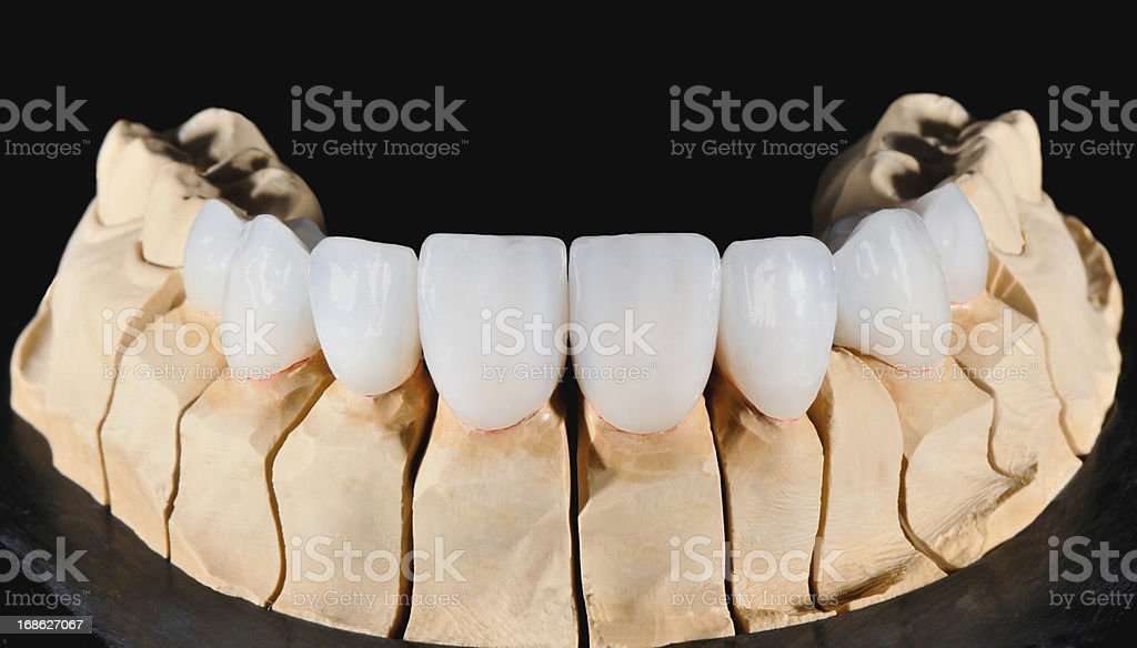 Dental Veneers stock photo