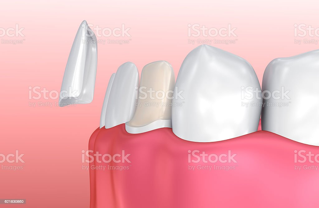 Dental Veneers: Porcelain Veneer installation Procedure. stock photo