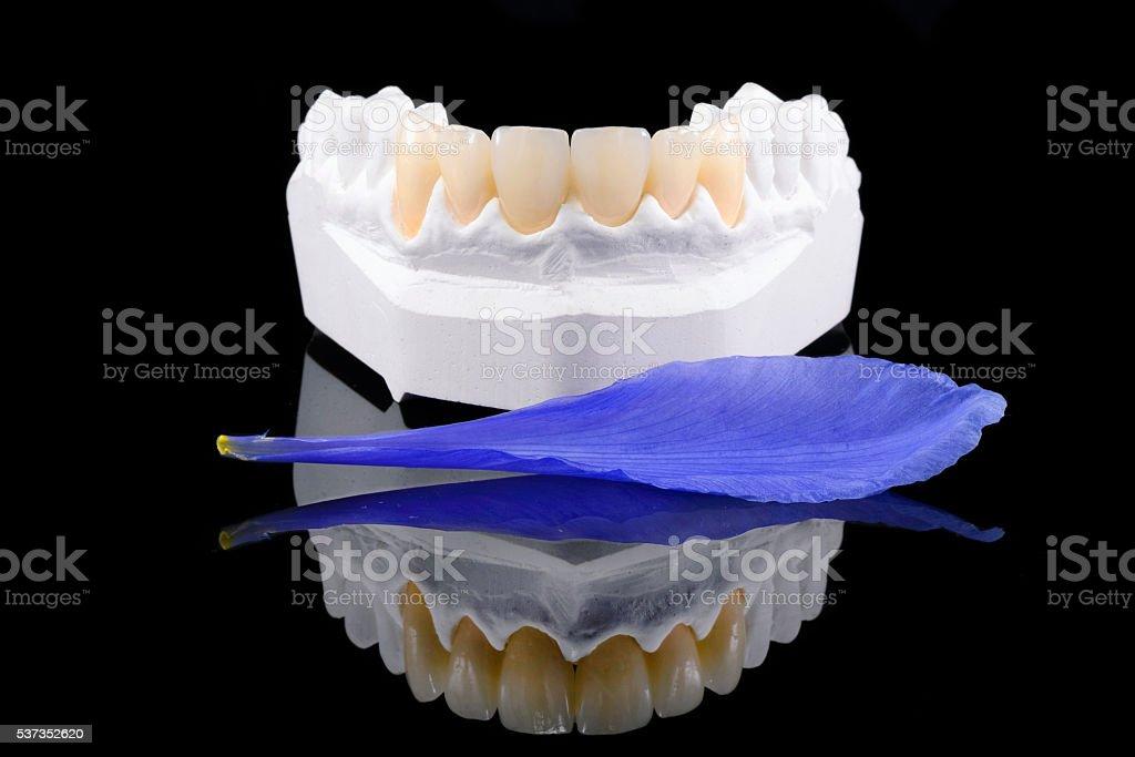 Dental Veneers with Flower Petal stock photo
