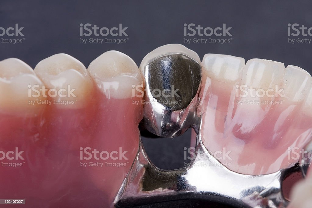 dental wax model stock photo