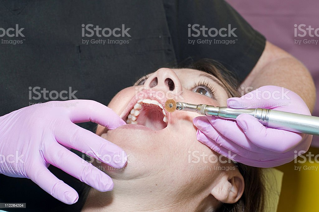 dental work royalty-free stock photo