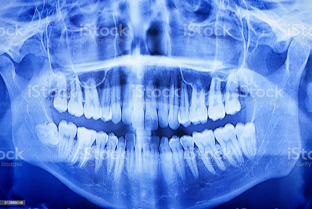 Dental X-ray, full-width and panoramic, seen on computer monitor stock photo
