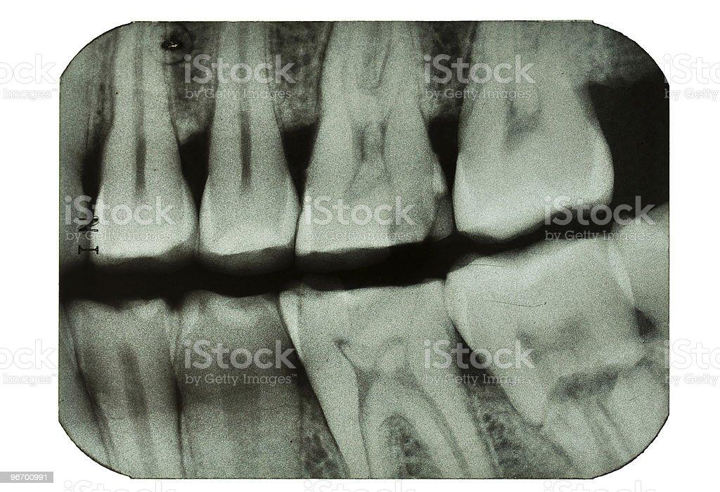 Dental x-ray of molar teeth stock photo