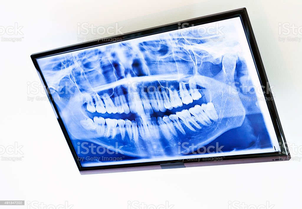 Dental X-ray on wall-mounted monitor stock photo