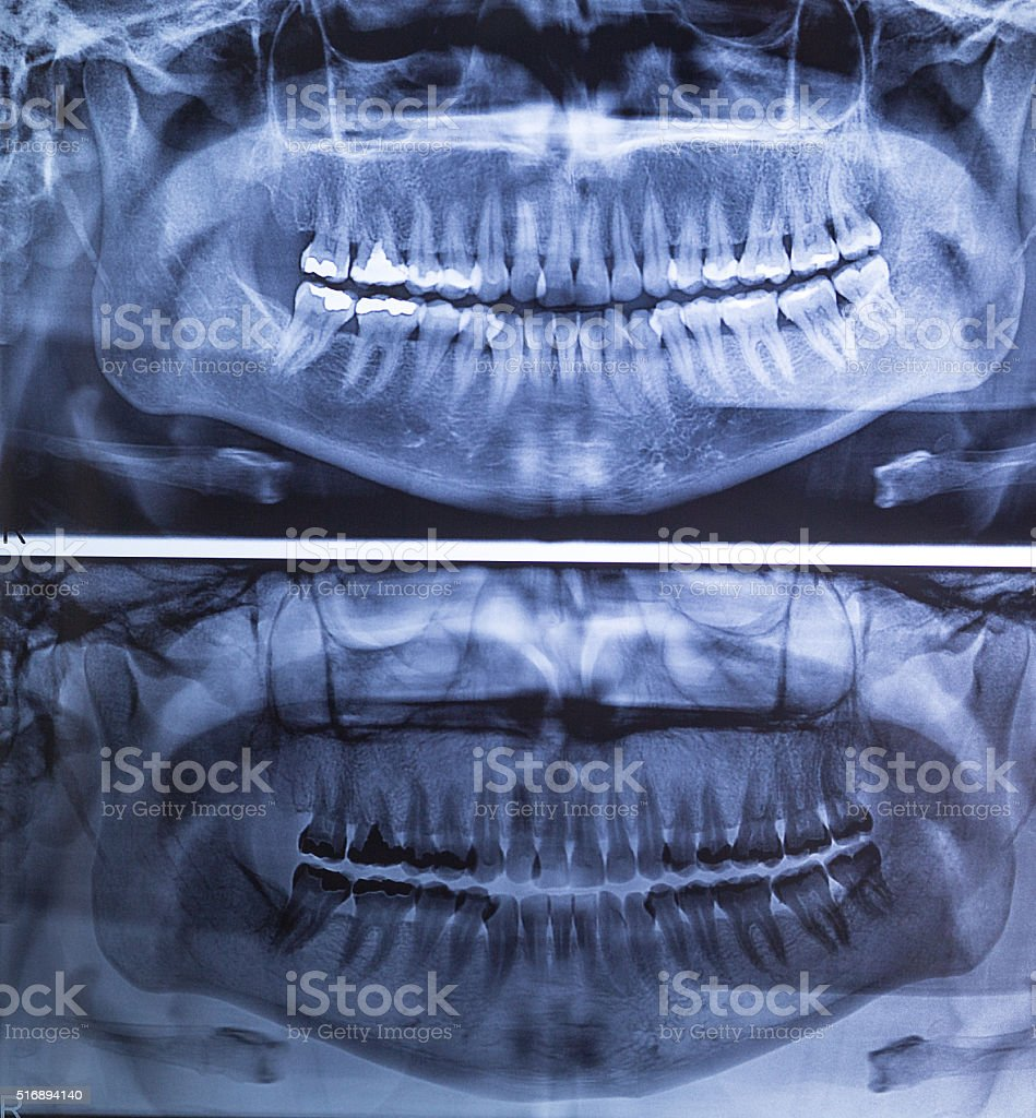 Dental X-Ray panoramic of Woman stock photo