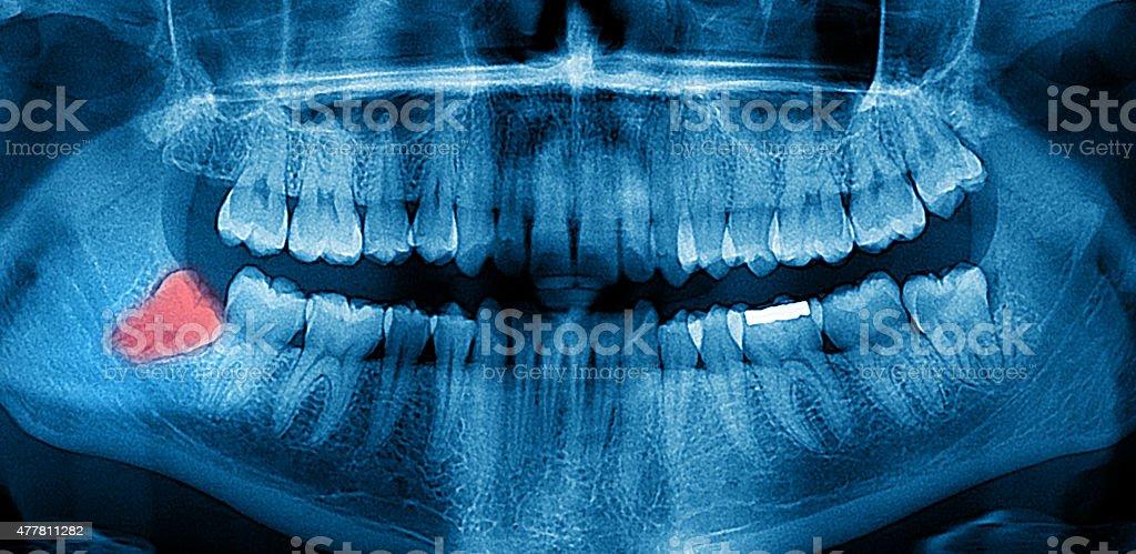 Dental X-Ray panoramic stock photo