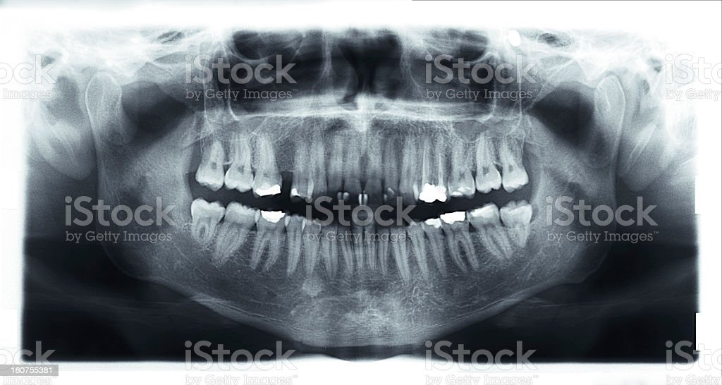 dental x-ray stock photo