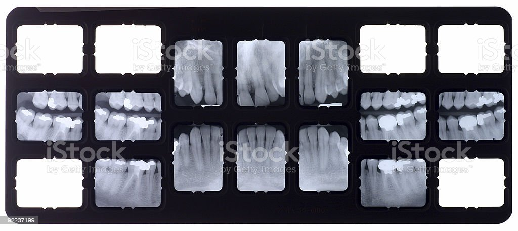 Dental xray royalty-free stock photo