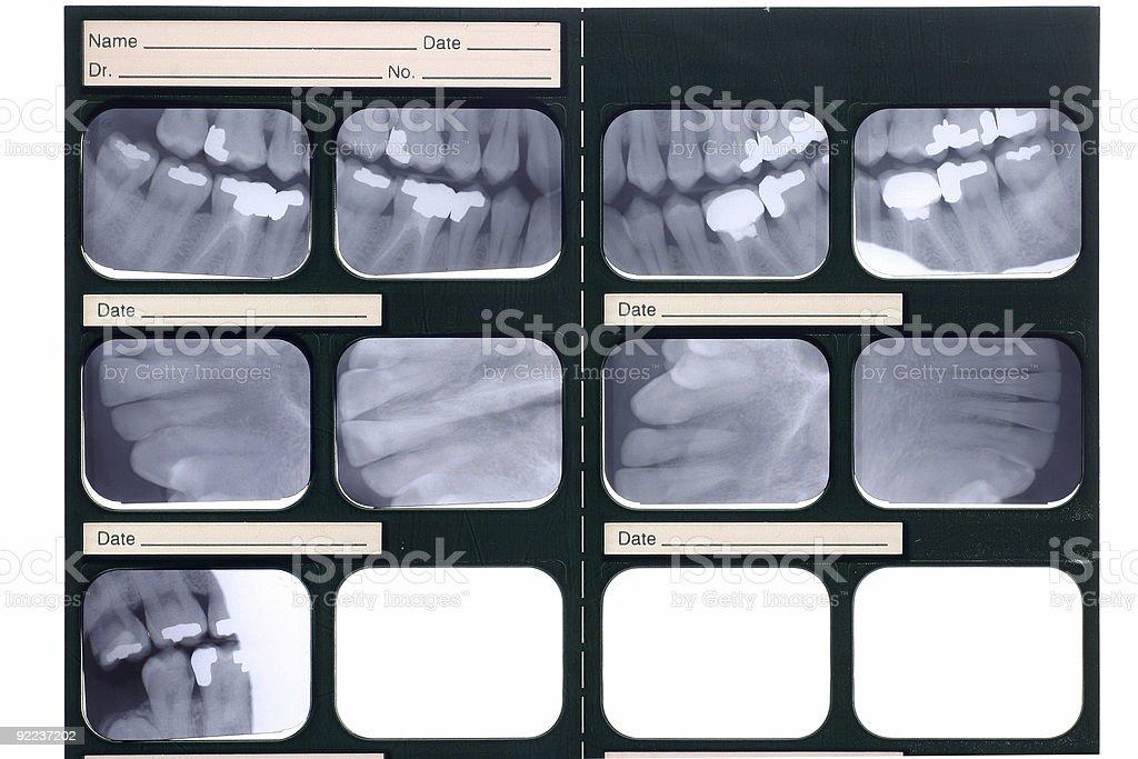 Dental xray stock photo