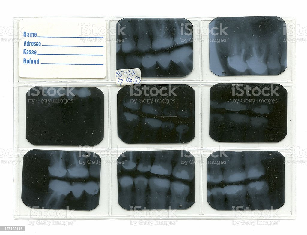 Dental X-rays - Forensic royalty-free stock photo