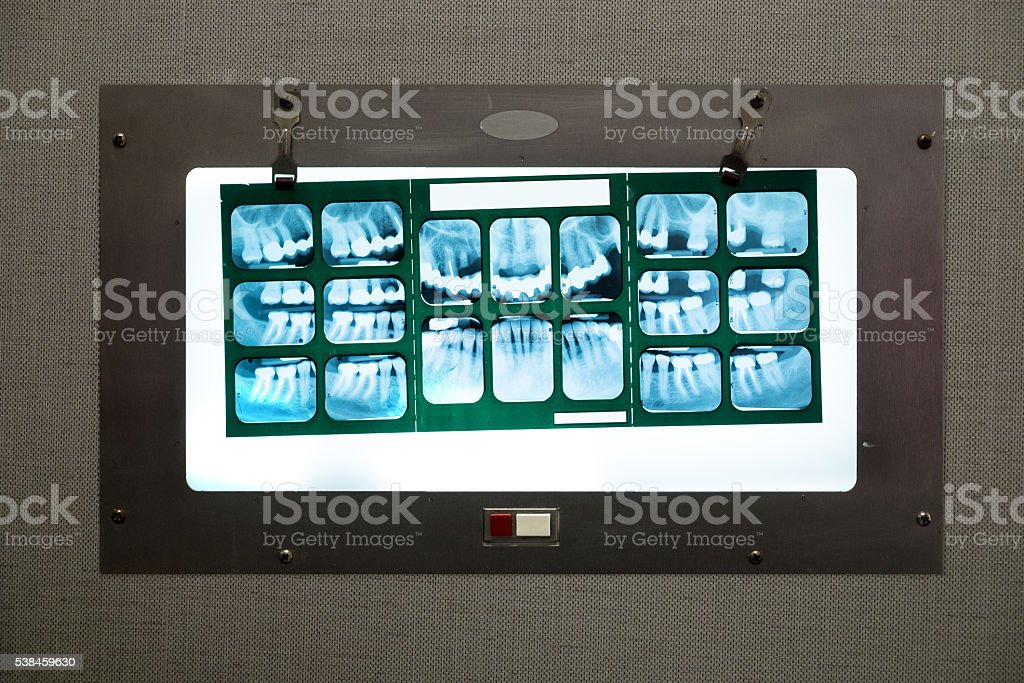 Dental X-rays. stock photo