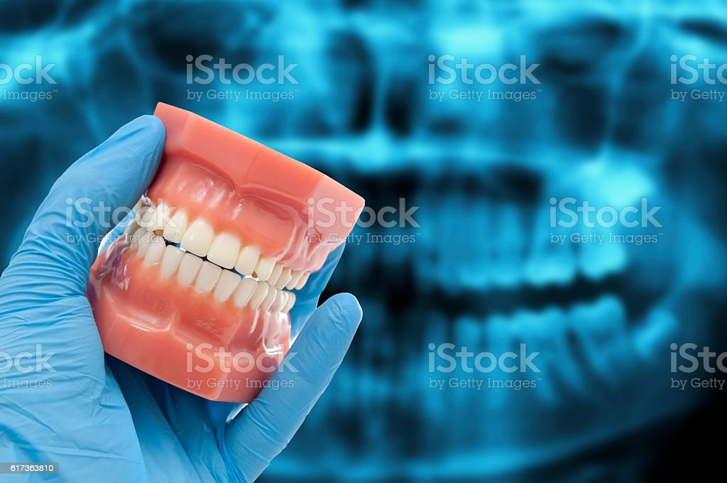 dentist hand show dental mold smiling over dental scan x-ray stock photo