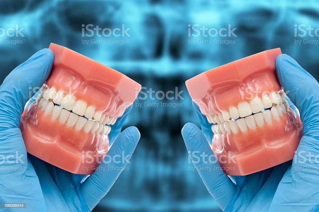 dentist hand show dental mould smiling over ct dental scan stock photo