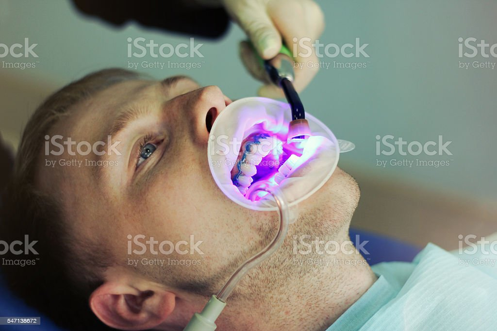 Dentist patient whitens teeth. Male patient. Ultraviolet lamp stock photo