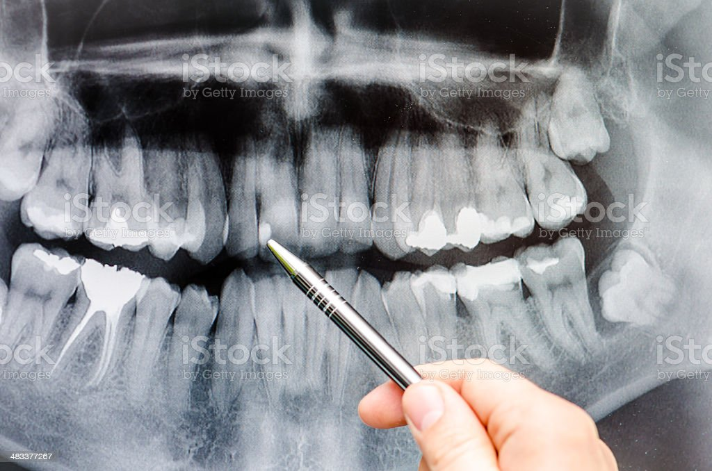 Dentist showing something on dental x-ray image royalty-free stock photo