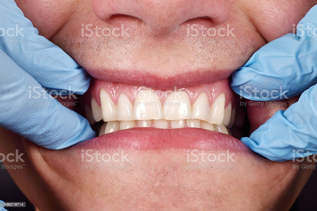 Dentist shows a patient's teeth stock photo
