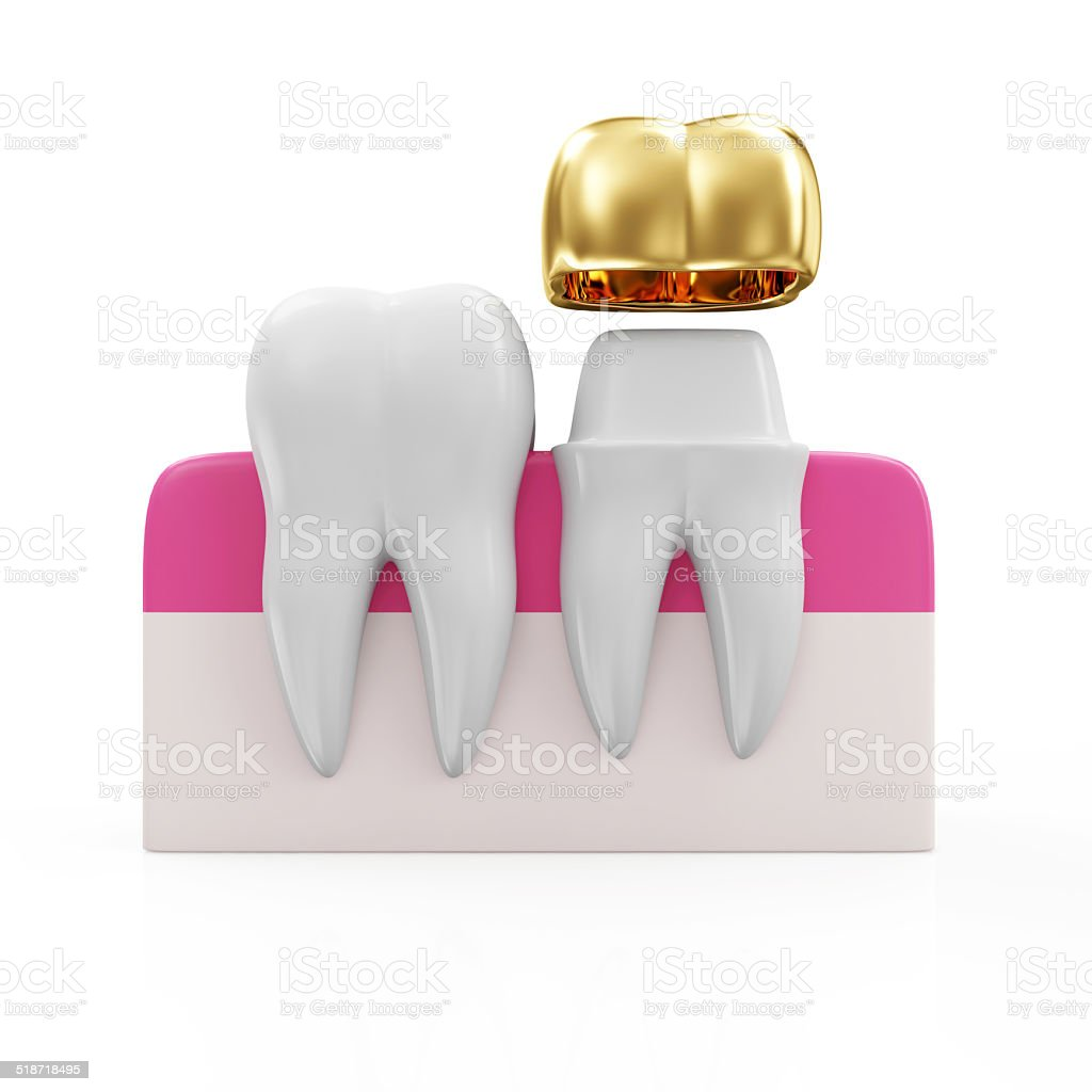 Dentistry Concept. Health Tooth and Teeth with Golden Dental Crown stock photo
