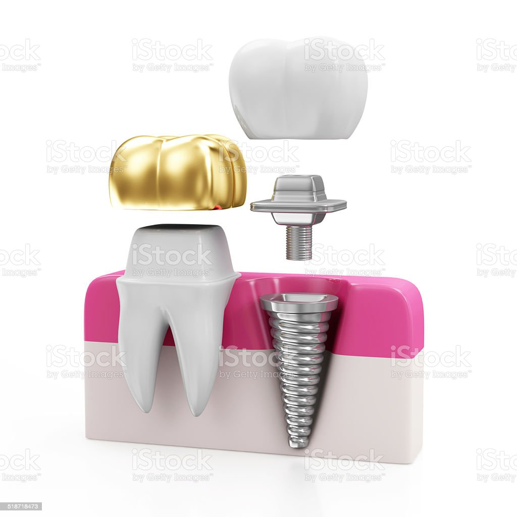 Dentistry Concept. Tooth with Golden Dental Crown and Dental implant stock photo
