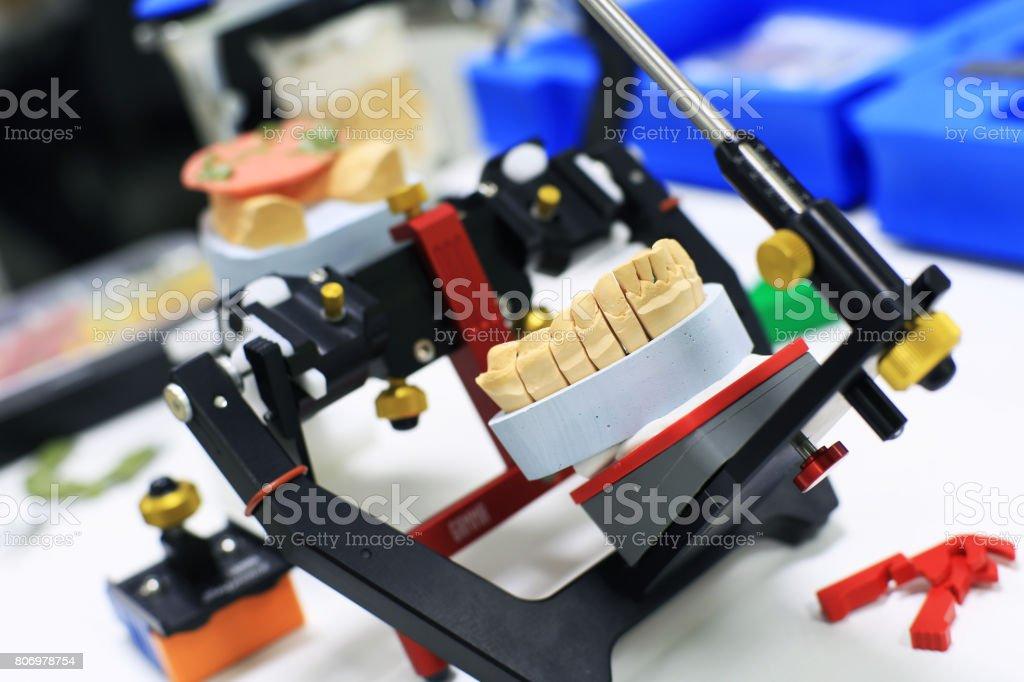 Denture cast stock photo