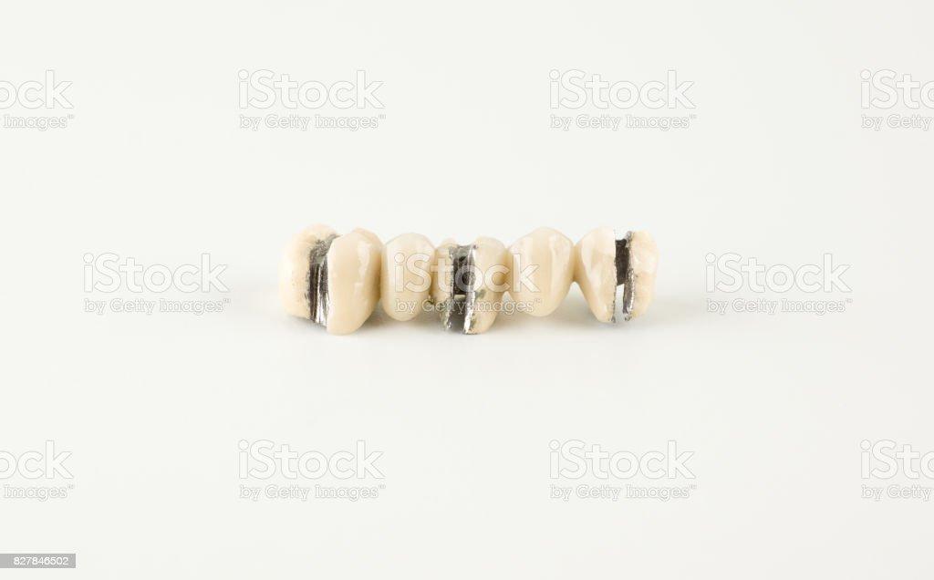 Denture damage from ceramic mass stock photo