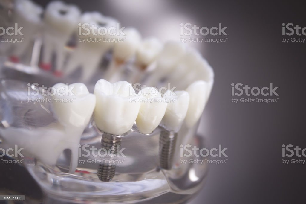 Denture for students transparent stock photo