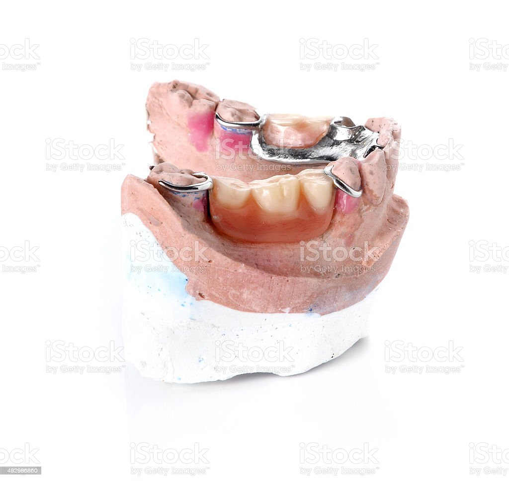 Denture mold,false teeth on white background. stock photo