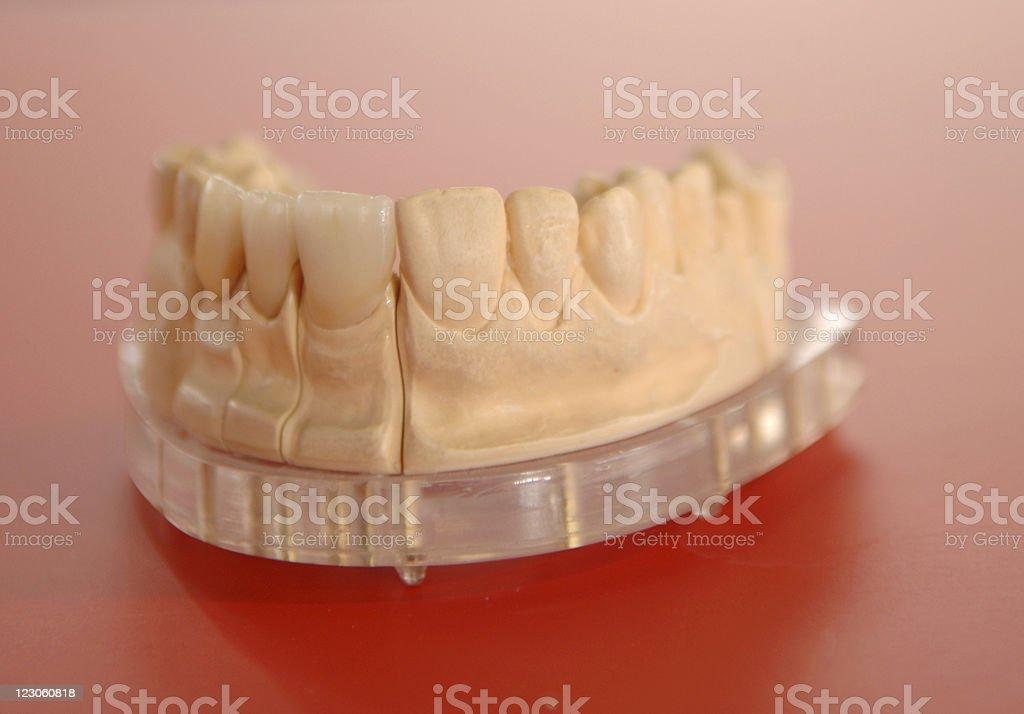 denture royalty-free stock photo