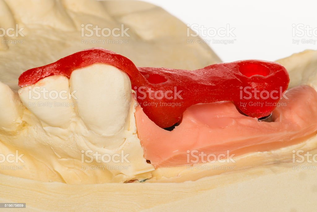 denture stock photo