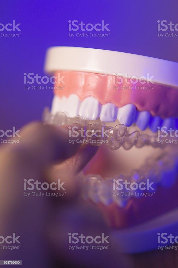Denture with transparent orthodontics stock photo