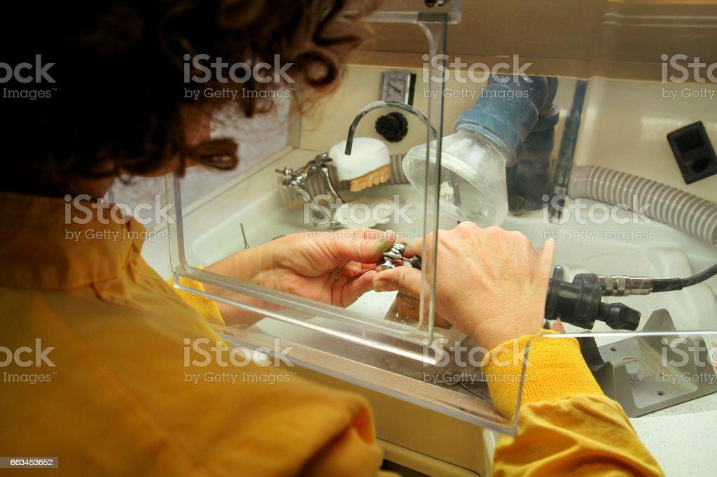 Dentures and dentistry. Dental prosthesis, dentures, prosthetics work. Dental technician in prices of making dentures. Hands of dental technician processing metal oral prosthesis. Stomatology stock photo