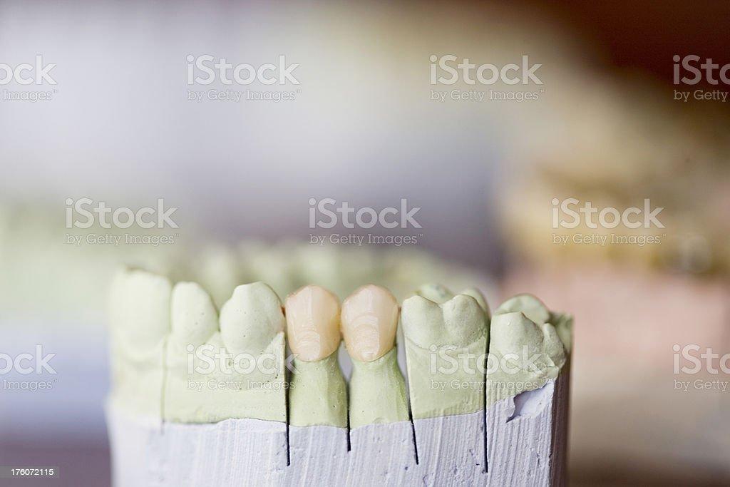 Dentures royalty-free stock photo