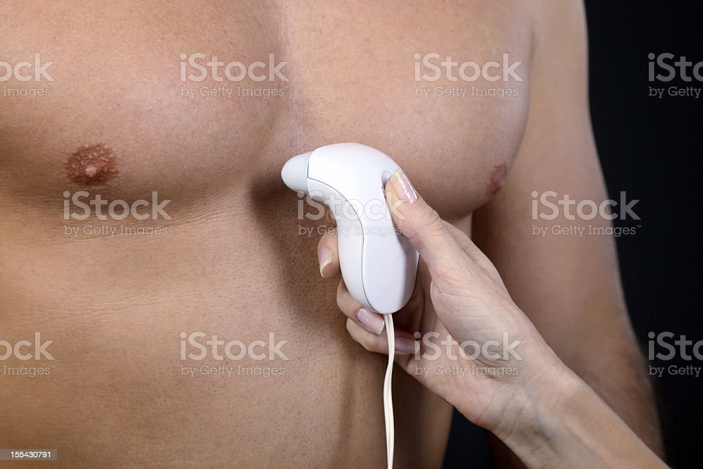 Depilation stock photo