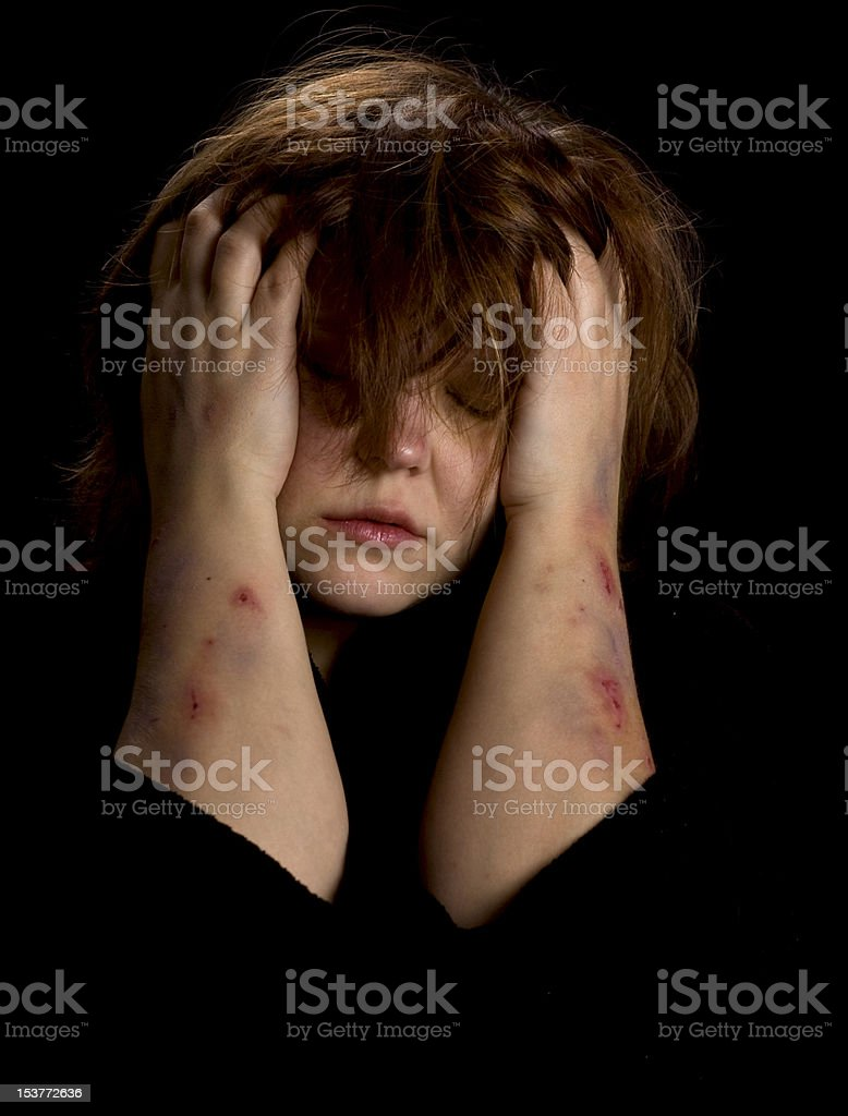 Depression - young woman stock photo