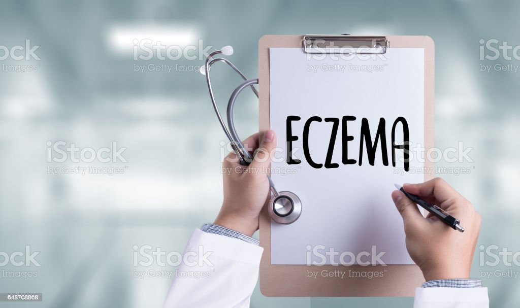 ECZEMA dermatitis eczema skin of patient , The problem with many people stock photo