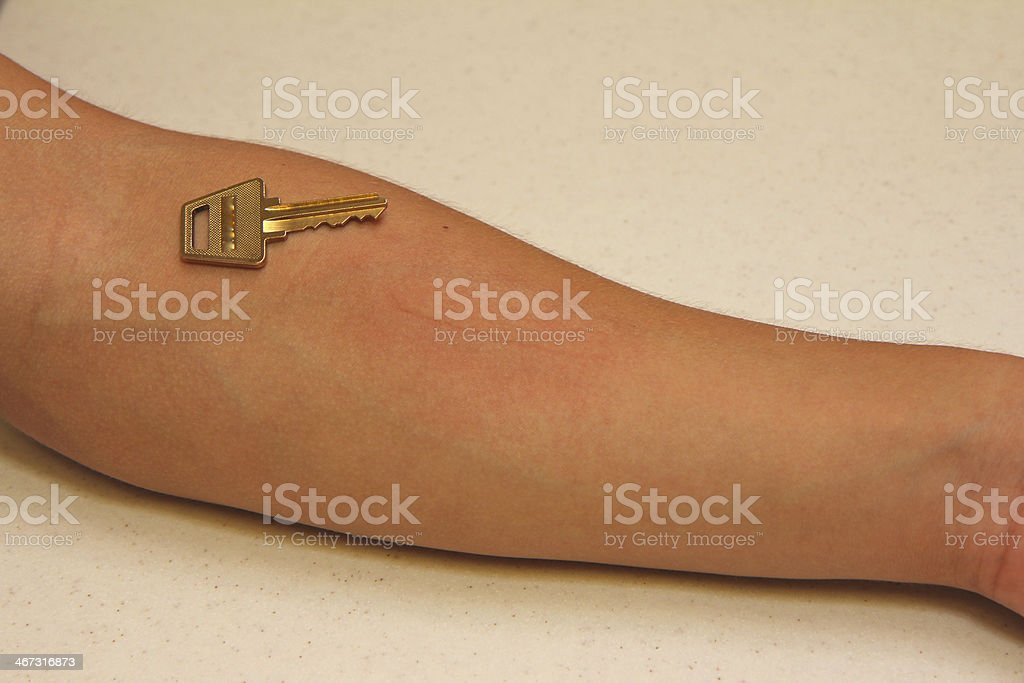 Dermatographic Urticaria with a Positive Key Test stock photo