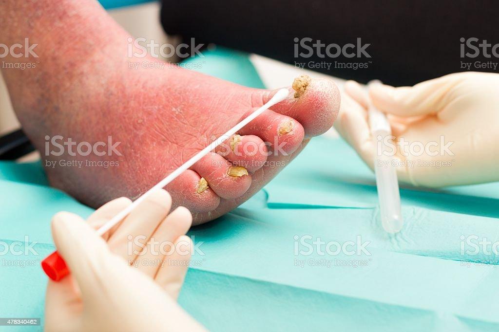 Dermatological Examination on Arteriosclerotical Leg With Nail F stock photo