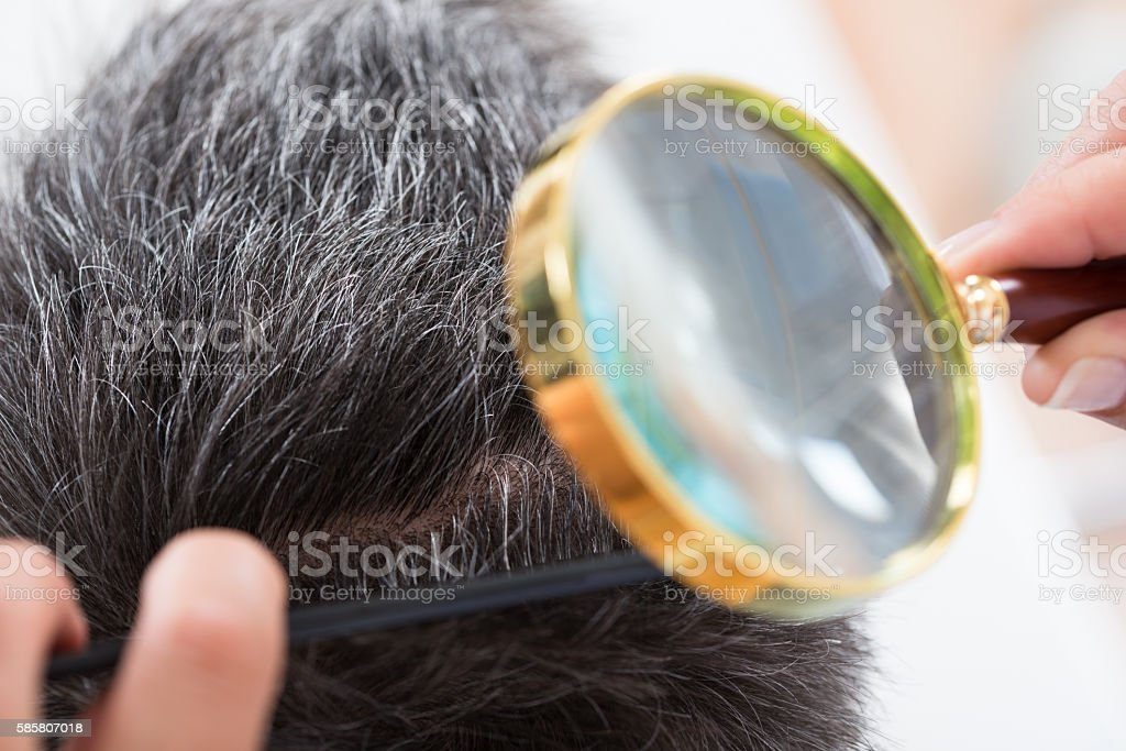 Dermatologist Checking Patient's Hair stock photo