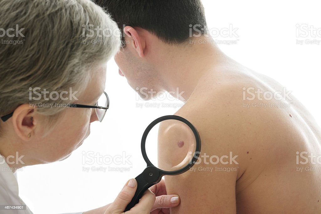 Dermatologist examines a mole stock photo