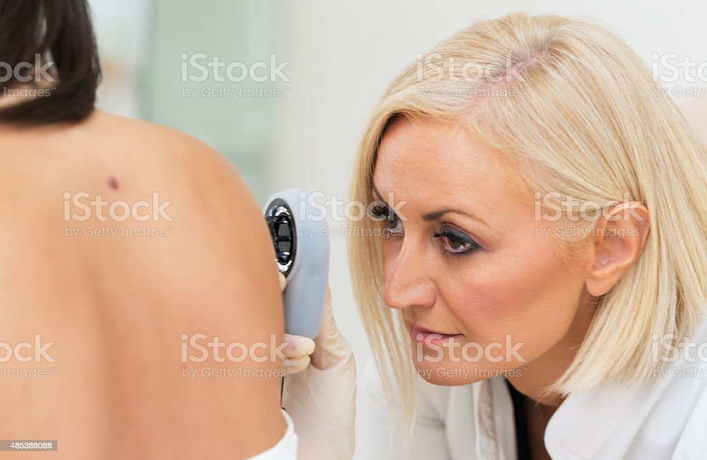 Dermatologist examining melanoma stock photo