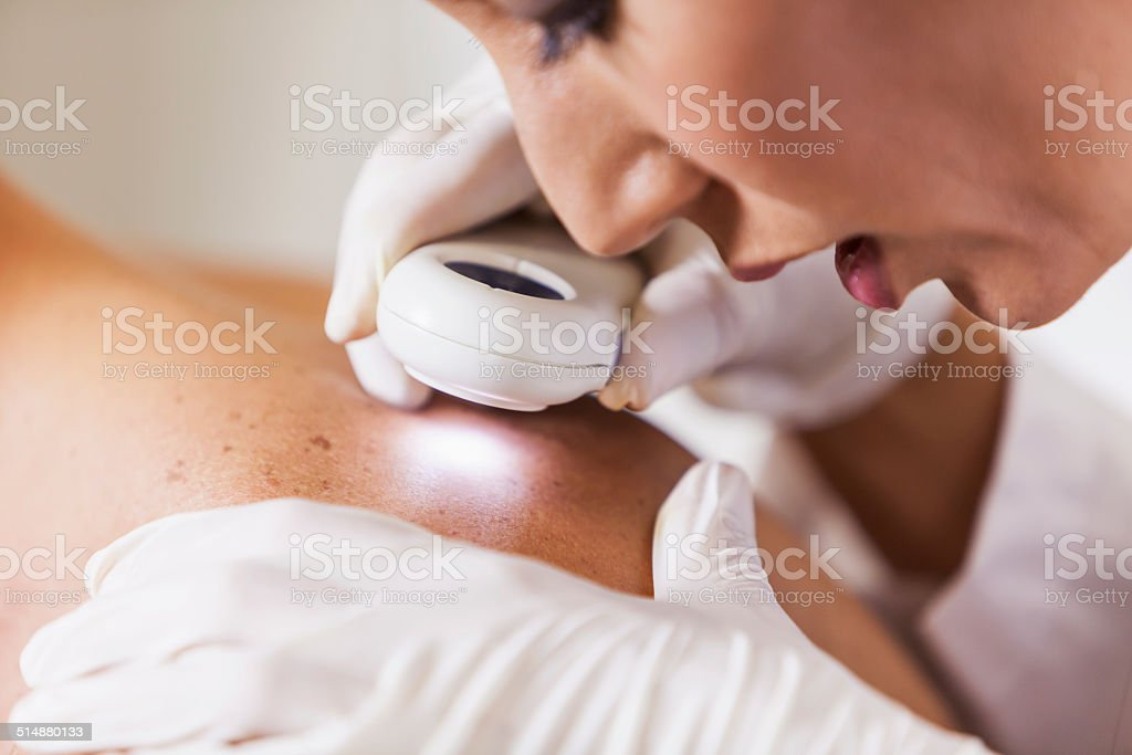 Dermatologist examining patient for signs of skin cancer stock photo