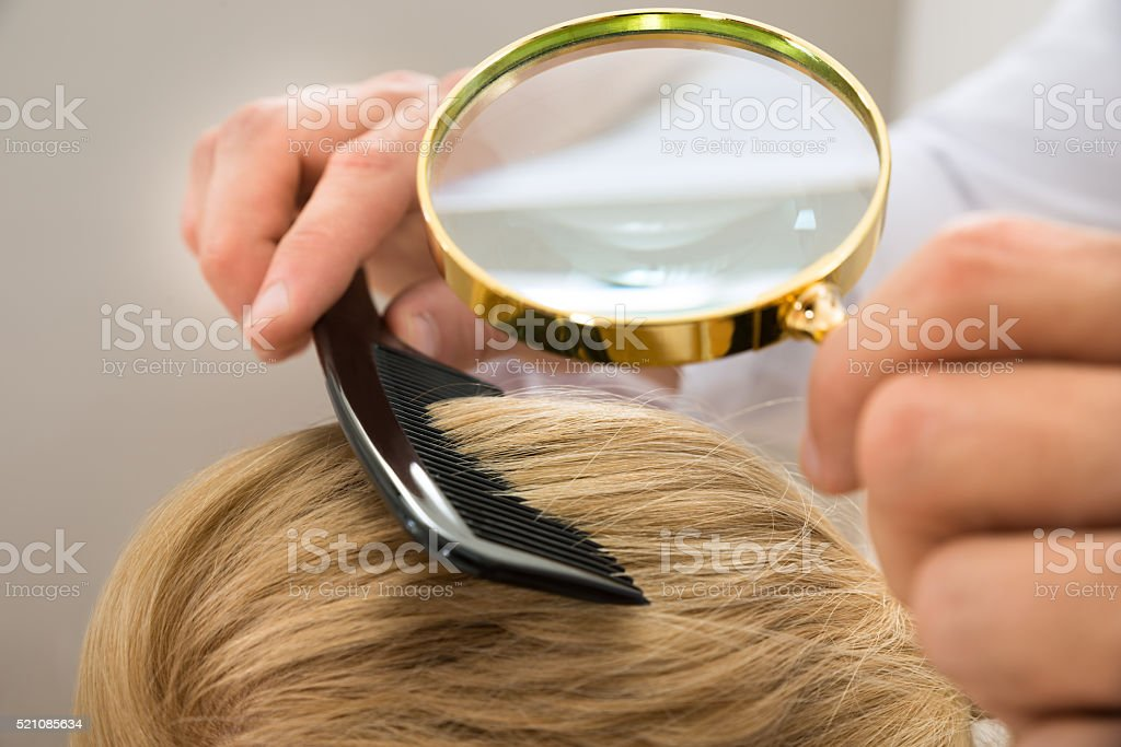 Dermatologist Looking Blonde Hair Through Magnifying Glass stock photo