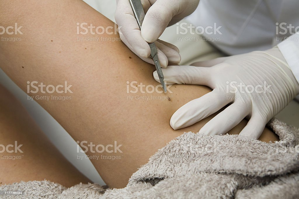 Dermatologist removing moles with tools stock photo