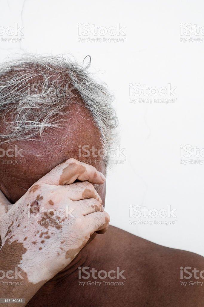 Desperate man affected by vitiligo royalty-free stock photo