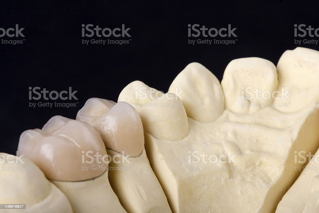 detail dental wax model stock photo